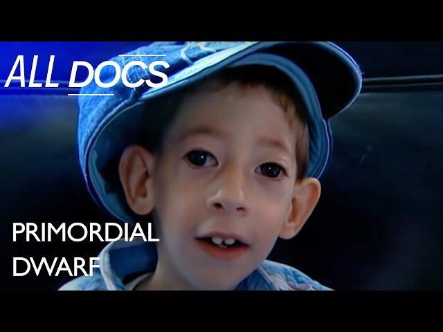 Primordial Dwarf: The World's Tiniest Boy | Extraordinary People Documentary | Documental