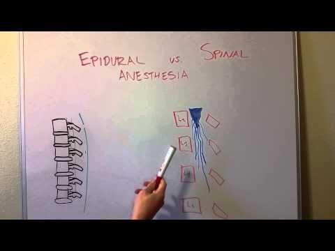 Epidural Vs Spinal Anesthesia