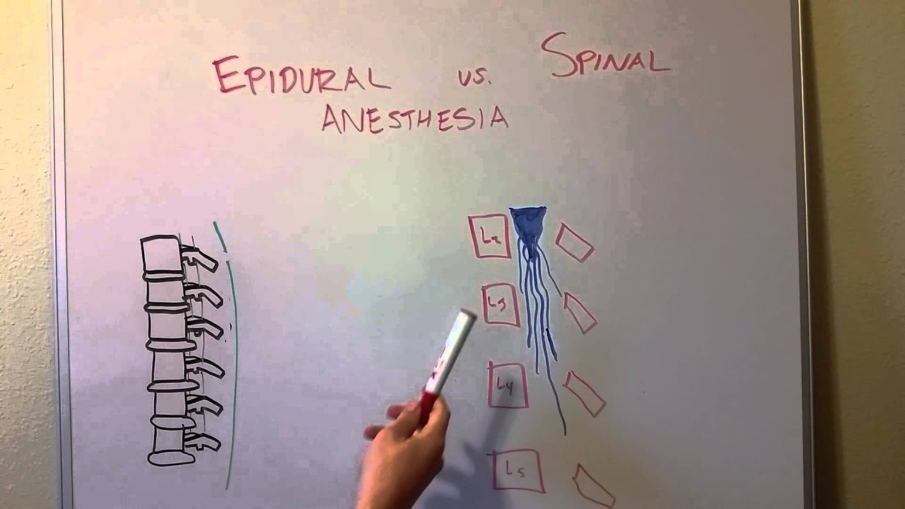 Epidural vs Spinal Anesthesia - YouTube