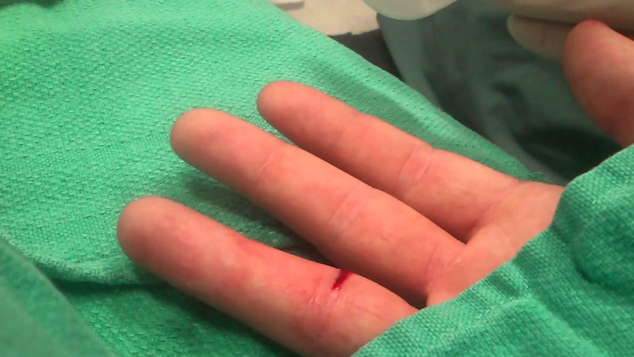 how to make a cut on your finger stop bleeding