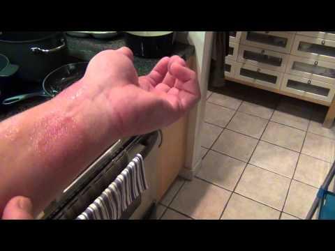 Ringworm And Eczema Nail Polish Cure