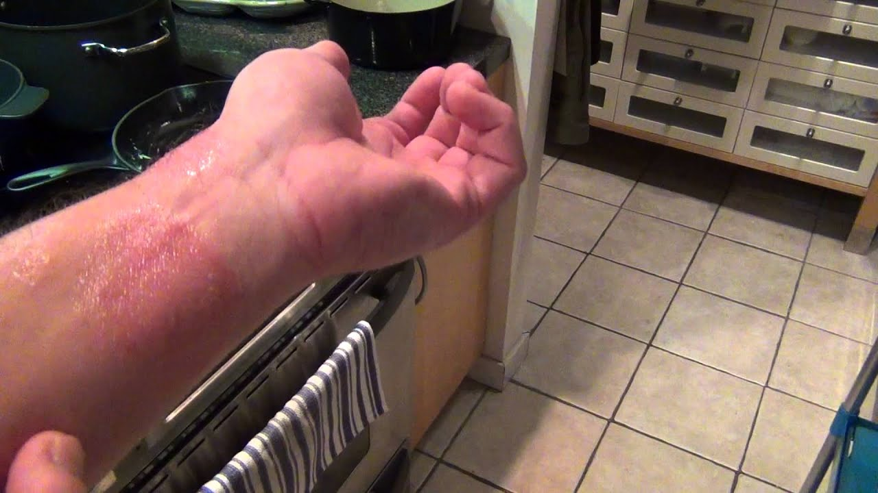 Ringworm and Eczema Nail polish cure - Part 1