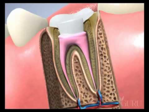 Điều trị tuỷ răng