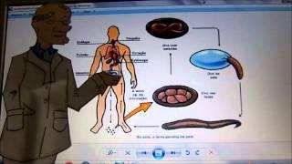 Vídeo aula sobre Amarelão