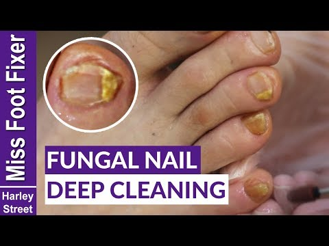 HOW TO GET RID OF FUNGAL INFECTION ON NAILS BY MISS FOOT FIXER MARION YAU