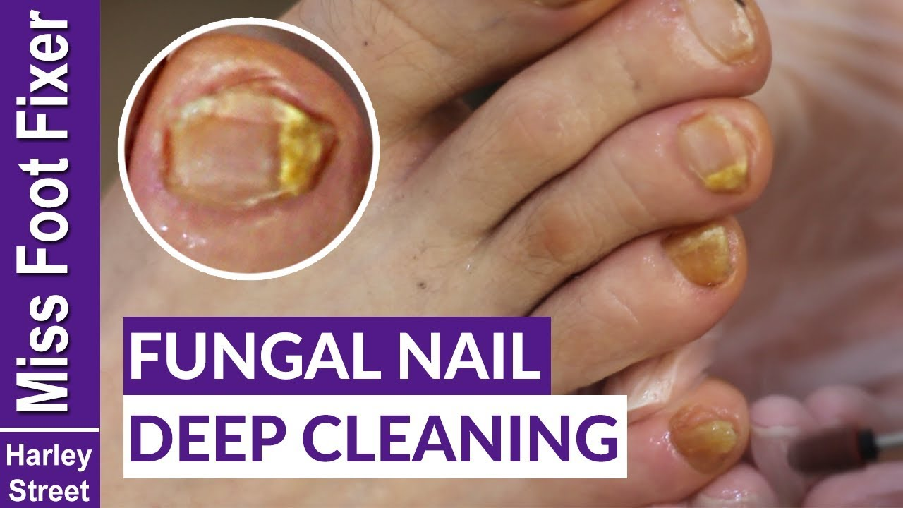 HOW TO GET RID OF FUNGAL INFECTION ON NAILS BY MISS FOOT FIXER ...