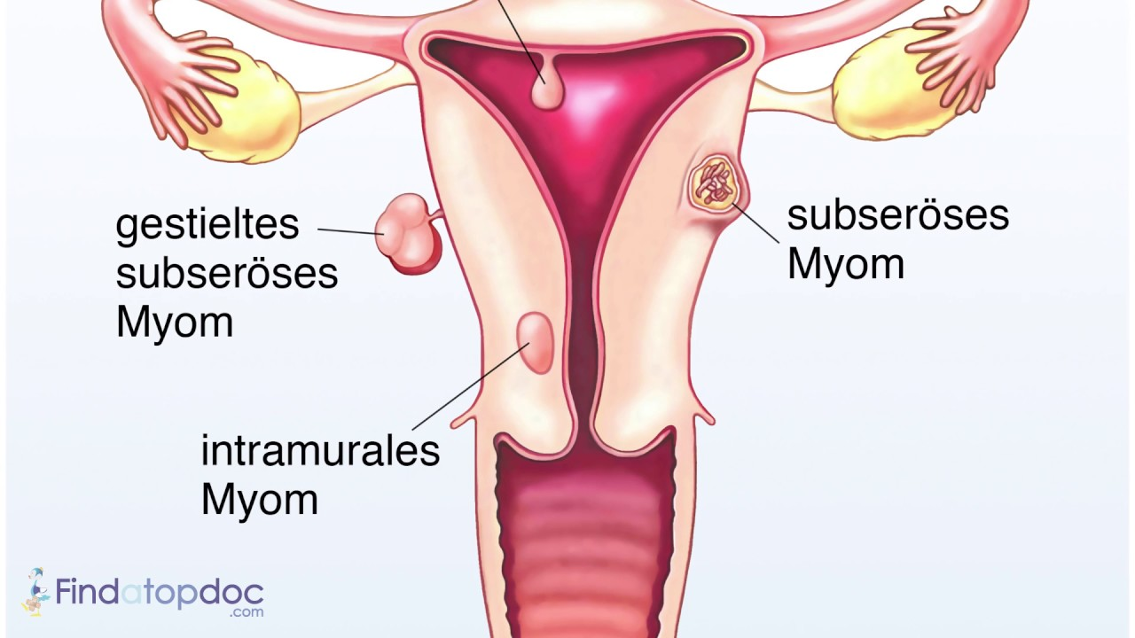 medium resolution of what causes menstrual cramps youtube diagram of campsites at roosevelt lake az diagram of cramps