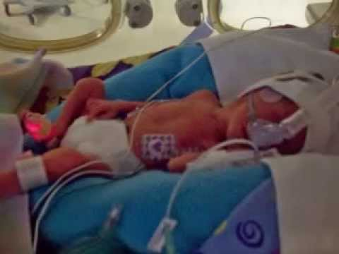 premature-baby-girl-born-at-26-weeks