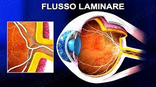 Angiografia a fluorescenza FAG e con verde indocianina ICGA (www.oculisticaTV.it)