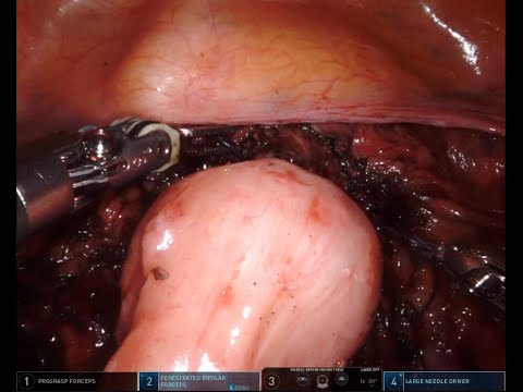 New Surgical Video - Rectovaginal Dissection with Stapled Disc Resection