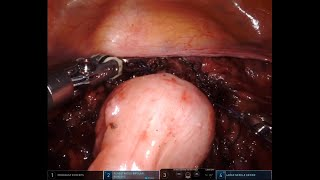 Rectovaginal Endometriosis Dissection with EEA Stapled Discoid Resection of Rectal Endometriosis