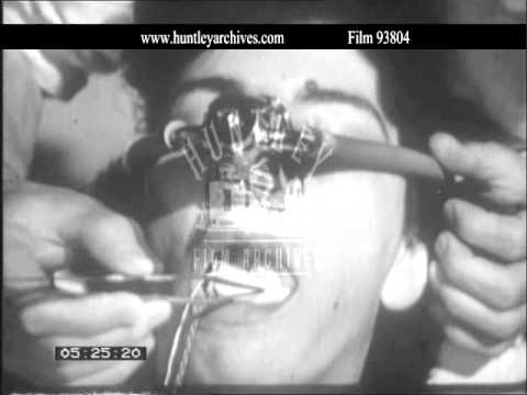 Dental Anaesthesia.  Archive film 93804