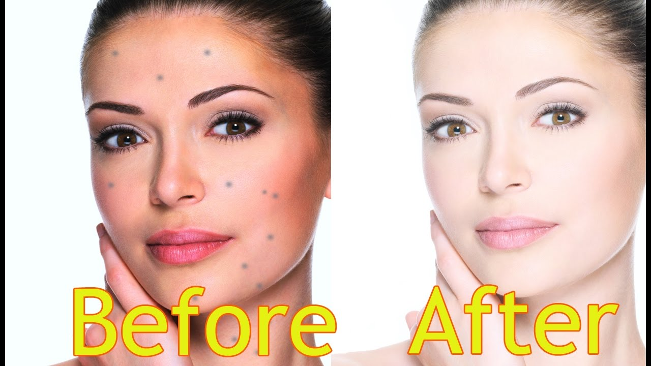 Watch How to get clear glowing skin naturally – Beauty tips video