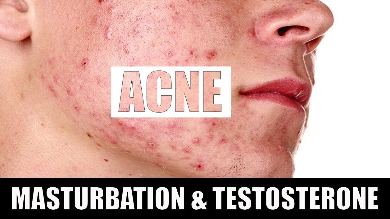 Good idea acne and masturbation not present