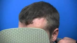Hair Implants - 1.800.859.2266