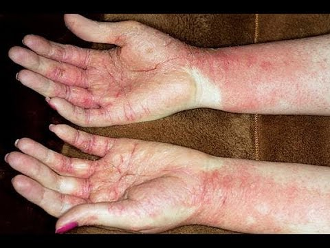 medication for eczema on face