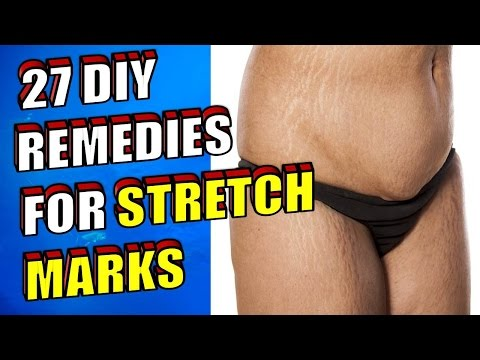 27 DIY Natural Home Remedies for Stretch Marks THAT WORK!