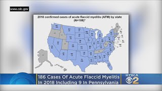 CDC: Nearly 200 Cases Of AFM Confirmed In U.S. In 2018