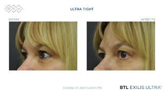 BTL Exilis Ultra - Before & After Video