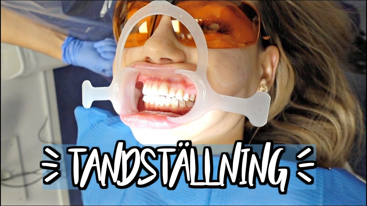 Sätter in en osynlig tandställning?! | vlogg