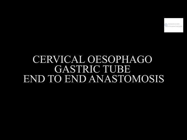 Laparoscopic Oesophagogastrectomy with Endo 360° and Filbloc