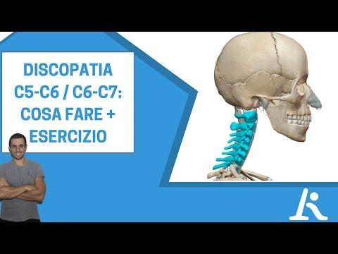 Discopatia C5-C6 o C6-C7: cos'è e cosa fare + esercizio
