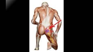 видео синдром грушевидной мышцы симптомы