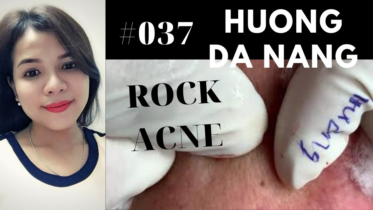 #037 | Get ROCK ACNE for lady | Lấy mụn đá | Acne treatment Hương Đà Nẵng Official