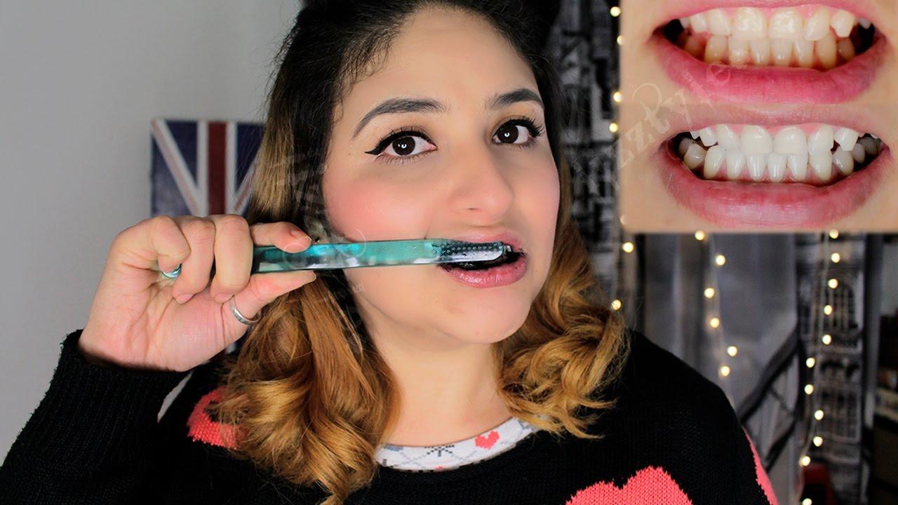 el carbon activado sirve para limpiar los dientes