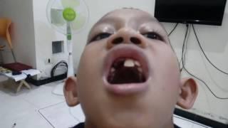 Kondisi Gigi pasca operasi bedah mulut