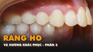 Khỏe đẹp cùng chuyên gia: Răng hô và hướng khắc phục - phần 3