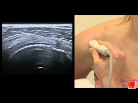ultrasound of the shoulder II