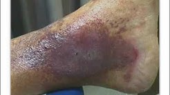 hqdefault - Diabetic Foot Clinic Niagara Falls