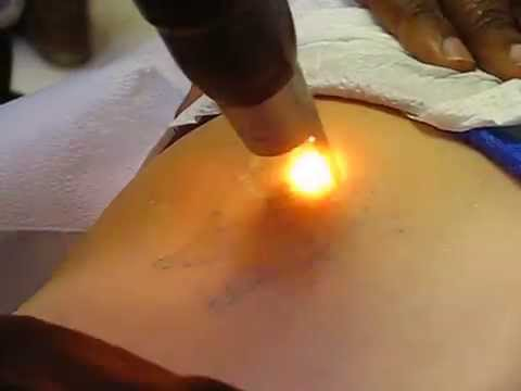 Nashville Laser Tattoo Removal - The Picosure - YouTube