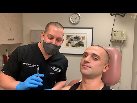 macho-mouth-natural-looking-male-lip-fillers-|-facial-sculpting-|-new-york-|-dr.-jason-emer