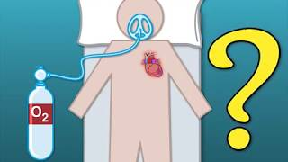 Outcomes with Oxygen in Suspected Myocardial Infarction