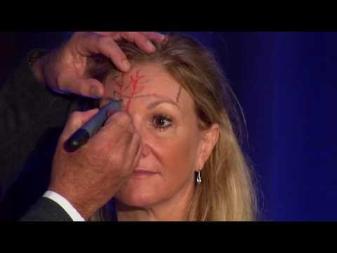 Injectors Anatomy Of The Forehead