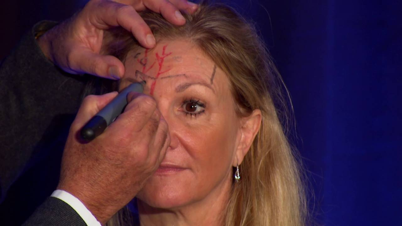 Injectors Anatomy of the Forehead - YouTube