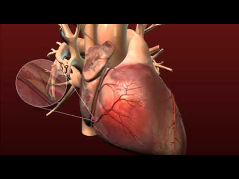 Heart Health - Coronary Artery Disease and Coronary Bypass Surgery with Dr. Brian Foy