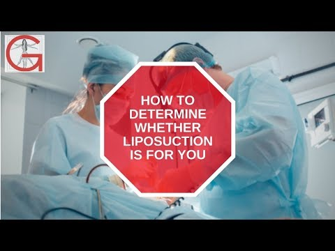 How To Determine If Liposuction Is For You | Dr. Michael Gartner