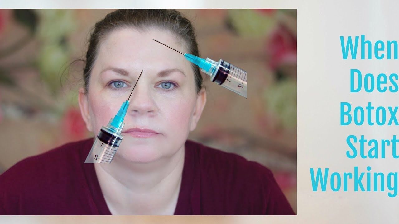How Long Does it Take Botox to Work? - YouTube