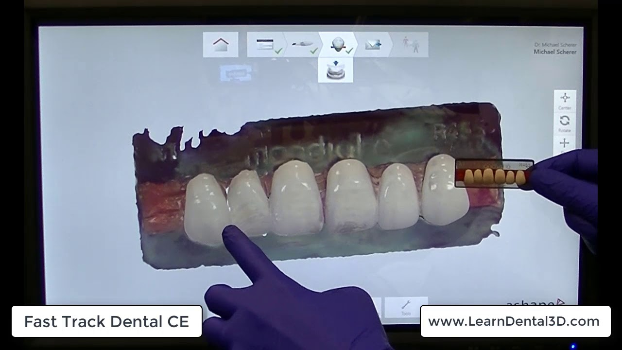 Use TRIOS to Scan Denture Teeth and Create a Custom Software/Tooth Library!