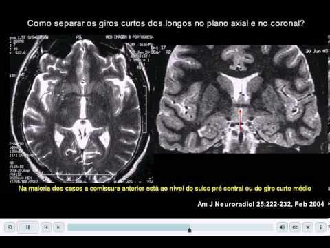 Aula 1 - Anatomia Lobo Temporal (parte 01 de 02) - YouTube