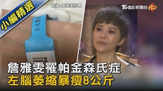 詹雅雯罹帕金森氏症  左腦萎縮暴瘦8公斤|TVBS新聞