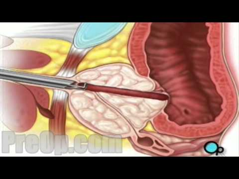 TURP Transurethral Resection Prostate, Penis and Bladder - PreOp® Surgery - Patient Education