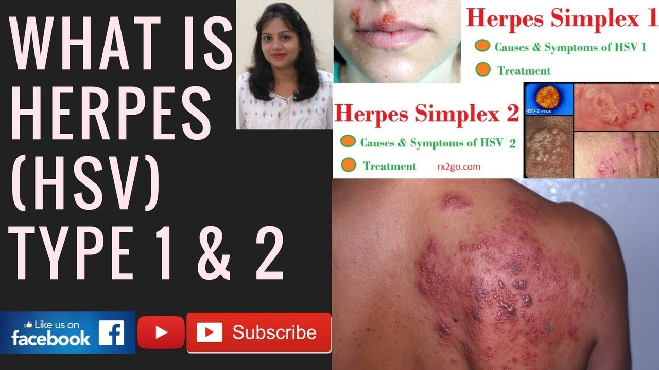 What is the Herpes simplex virus