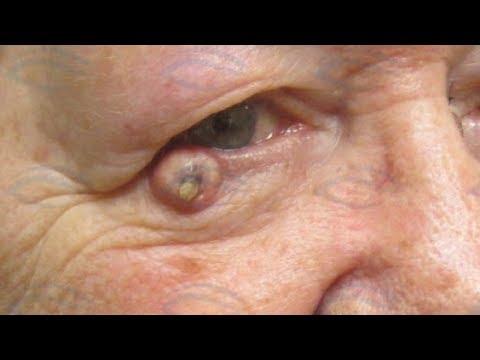 Killer Blackheads!  A Guide to Sun Damaged Skin!  Skin Cancer Treatment