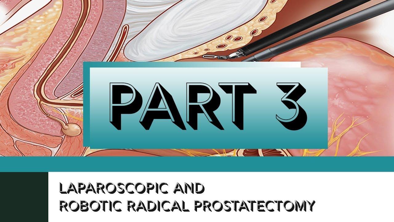 Laparoscopic And Robotic Radical Prostatectomy Part Iii Surgical