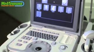 Портативный ультразвуковой сканер SonoScape A6(Компания