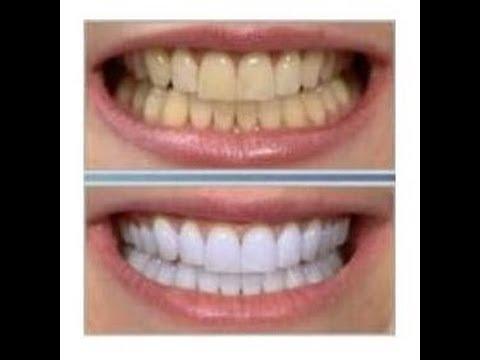 blanquear los dientes en casa
